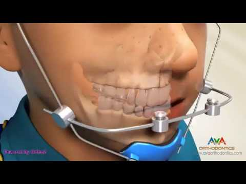 Facemask Reverse Pull Headgear   Orthodontic Device