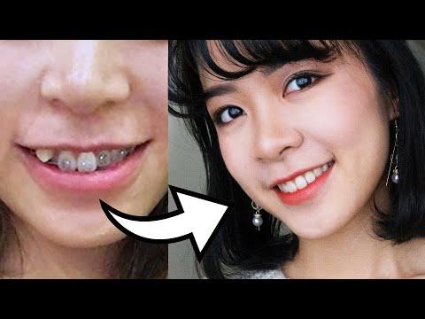 9 Điều Cần Biết Về Niềng Răng ✧ CHAU VU ✧ Chia Sẻ Kinh Nghiệm Khi Niềng Răng