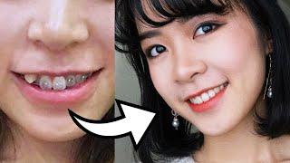 9 Điều Cần Biết Về Niềng Răng