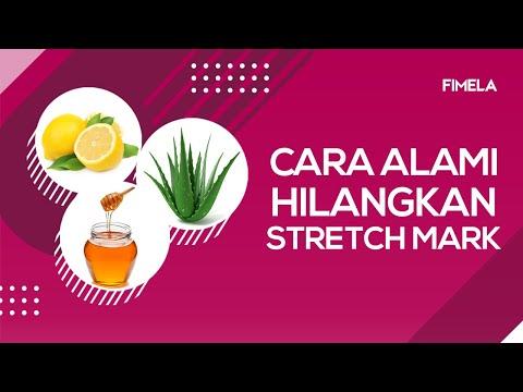 DR OZ INDONESIA - Cara Pencegahan Stretch Mark  (29/07/16).