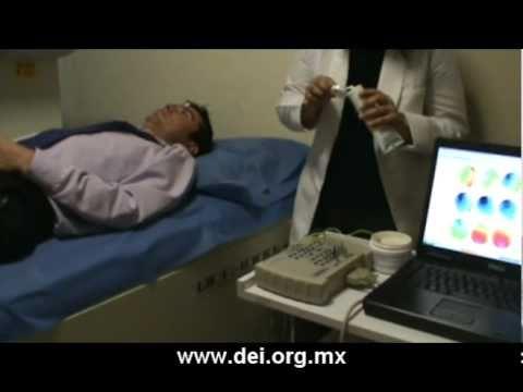 Para que sirve el electroencefalograma con mapeo cerebral