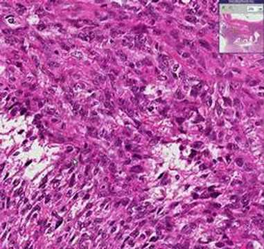 Histopathology Uterus --Leiomyosarcoma