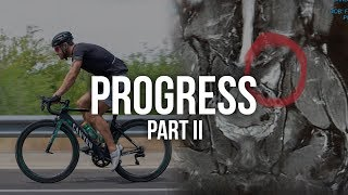 Identifying The Injury || Progress Part 2