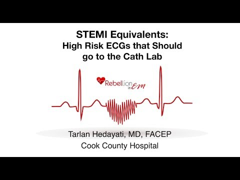 STEMI Equivalents - Tarlan Hedayati, MD