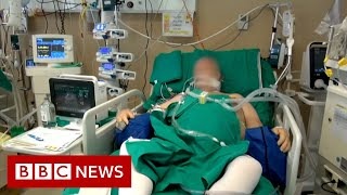 Coronavirus: What happens in an intensive care unit? - BBC News