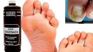 Curar pie de atleta con agua oxigenada y curar hongo en las uñas de los pies.