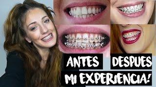 MI EXPERIENCIA CON BRACKETS! FOTOS ANTES Y DESPUES (todo sobre los brackets) | MeLlamoVania