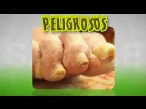 Itrakonazol o terbinafin al hongo de las uñas