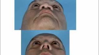 Rhinoplasty with rib cartilage