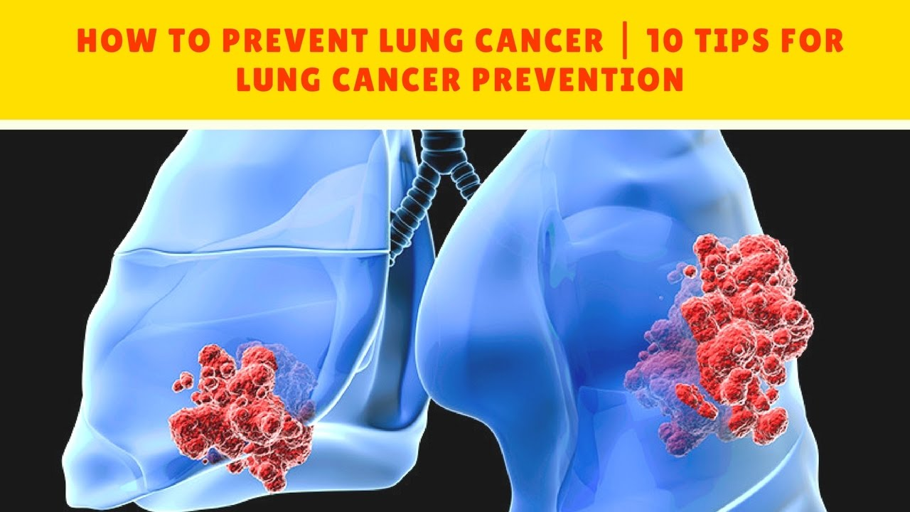 How to Prevent Lung Cancer advise