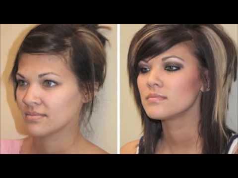Boulder City, NV Rhinoplasty Nose Job Before & After