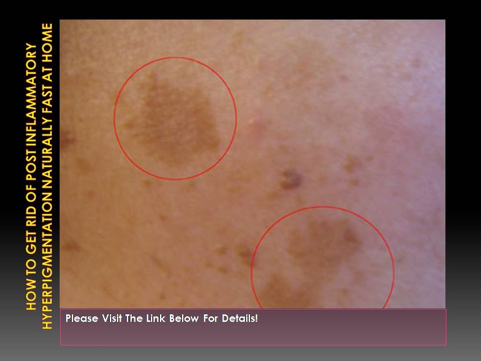 How To Get Rid Of Pigmentation Naturally