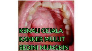 Mengenal Lebih Dalam Penyebab Penyakit Gigi dan Mulut | lifestyleOne.