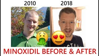 🙀 MINOXIDIL BEFORE & AFTER 4 Years!!!