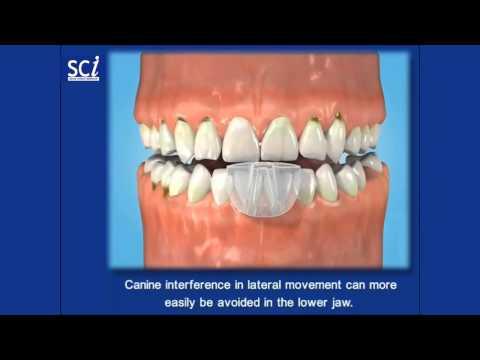 SCI-Sleep Clench Inhibitor