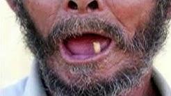 Weston FL Dentist