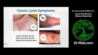 Lyme Disease: Falling Through The Cracks, Dr. Risk