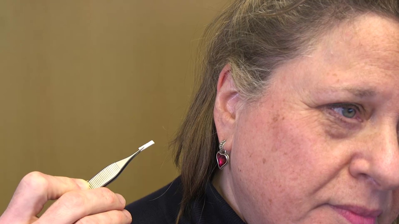 Ear Wick Placement Job Aid - Final