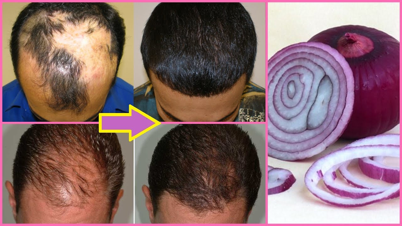Onion juice for hair regrowth