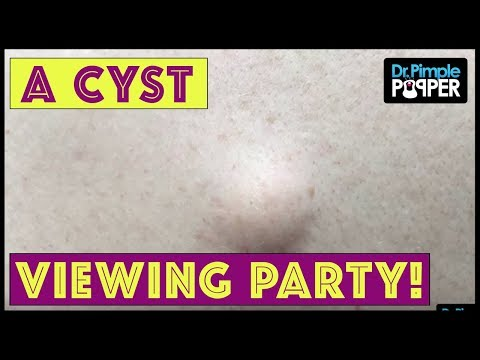 Welcome to His Cyst Viewing Party!!