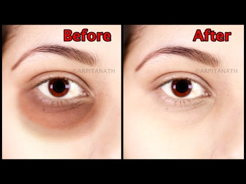 How To Get Rid Of Deep Set Eyes Naturally