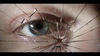 Sepa cómo reconocer si sufre mal de ojo