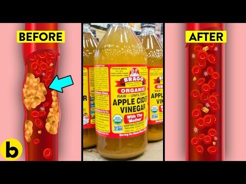 Important Health Benefits Of Apple Cider Vinegar