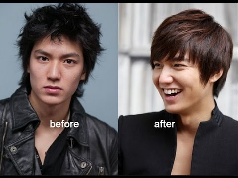 Lee min ho before and after plastic surgery youtube