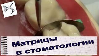 Как пользоваться матрицами при лечении кариеса  Стоматологические инструменты