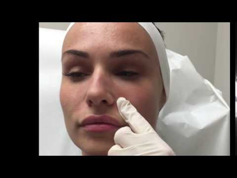 JUVÉDERM® Ultra for Nasolabial Fold - YouTube