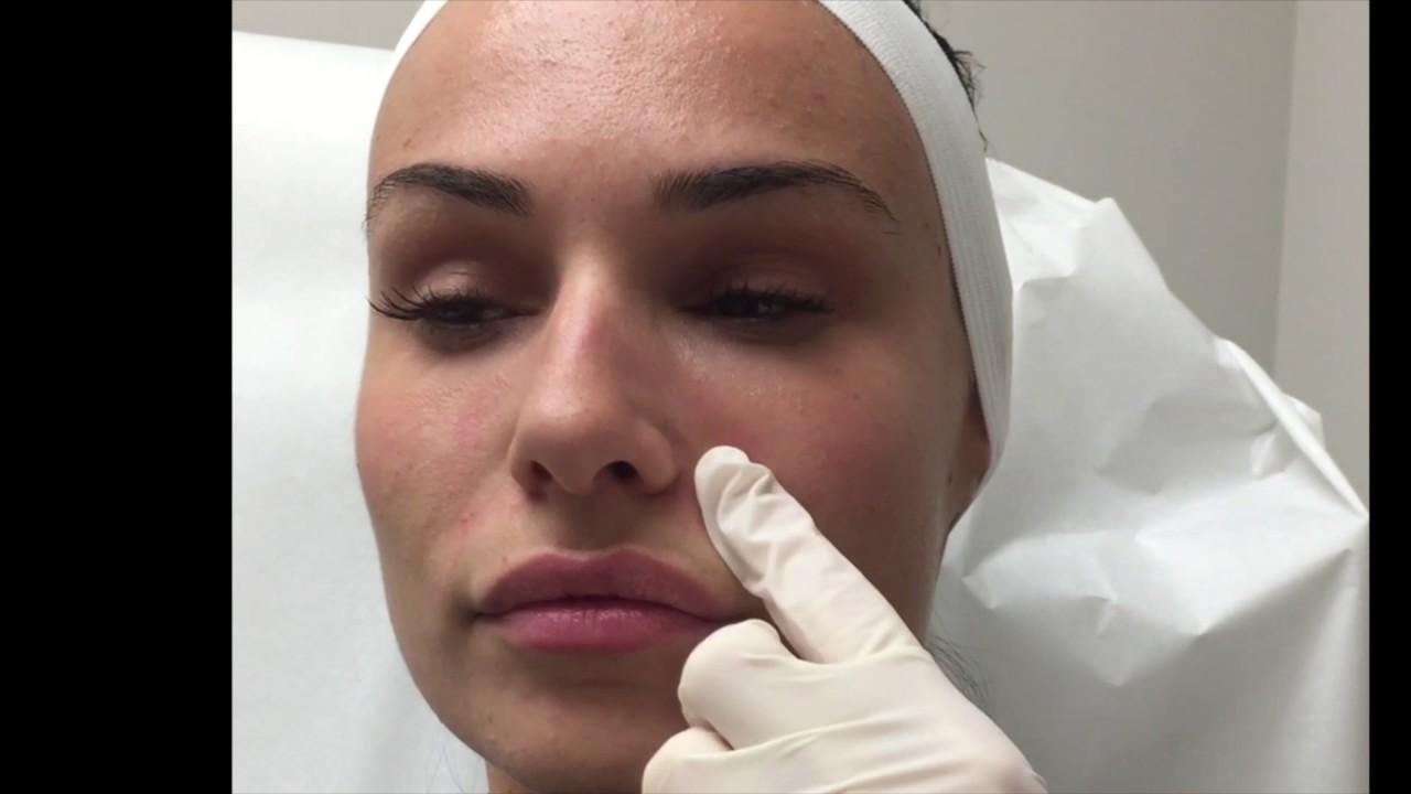 JUVÉDERM® Ultra for Nasolabial Fold