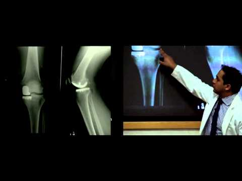 Introduction to Hip and Knee Replacement- Lecture, Dr. Nitin Goyal
