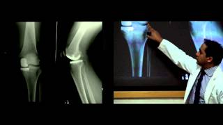 Video Introduction to Hip and Knee Replacement- Lecture, Dr. Nitin Goyal download MP3, 3GP, MP4, WEBM, AVI, FLV November 2017