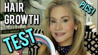 💝HAIRMAX LASERBAND REVIEW   BEFORE AND AFTER PICTURES   HOW TO GROW HAIR  💝