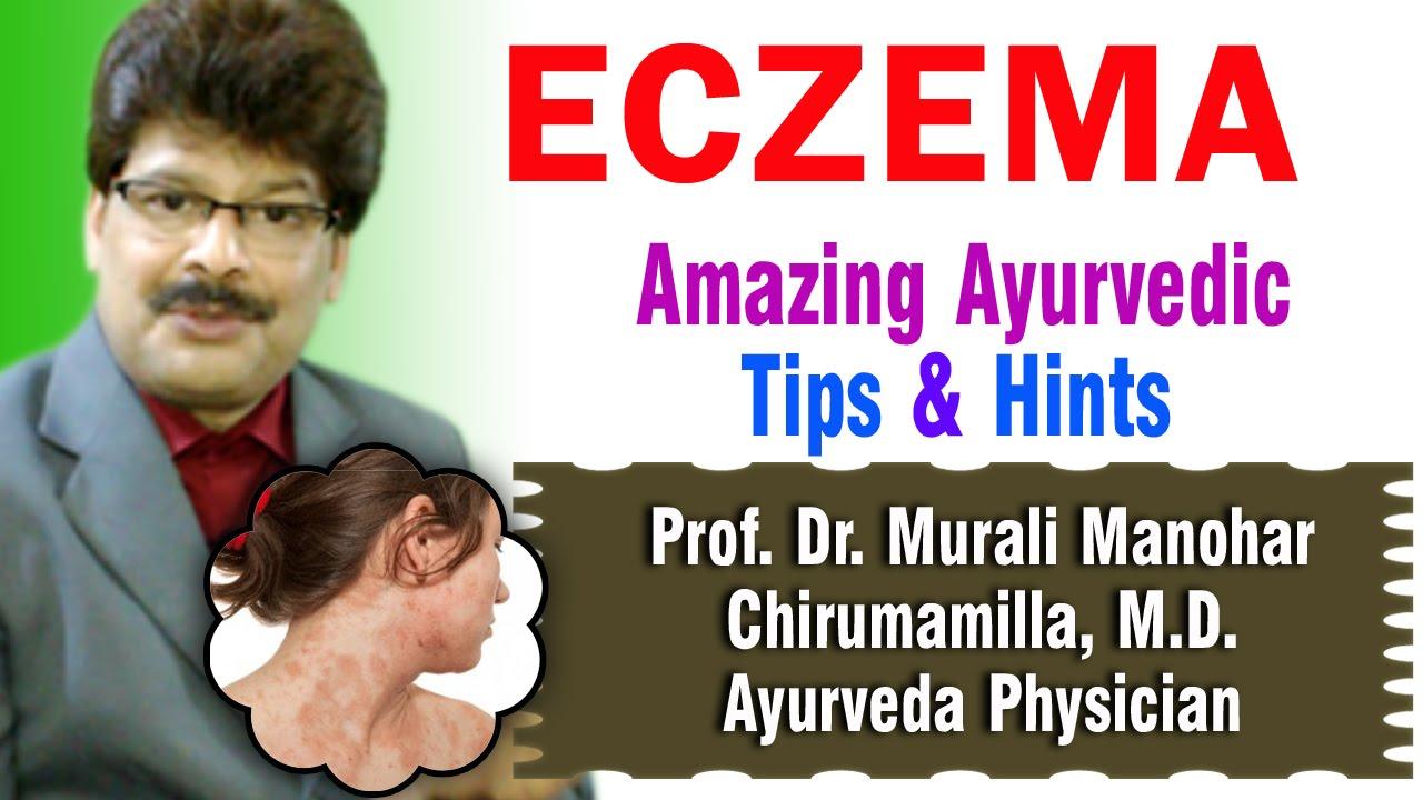 Eczema Ayurvedic Remedies Prof Dr Murali Manohar Chirumamilla