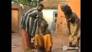 видео Почему выпадают волосы