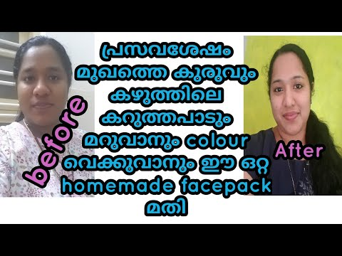 Special Tip to remove stretch mark, black colour in neck, skin whitening/motherhood