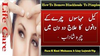 Keel Muhase ka Ilaj /Face Ke Dane Pimples Ka Gharelu Ilaj/How To Remove Pimples