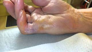xiapex patient information video for treatment of dupuytren s contracture