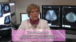 Диагностика заболеваний молочных желез. Лучевая диагностика(, 2014-02-24T06:53:23.000Z)