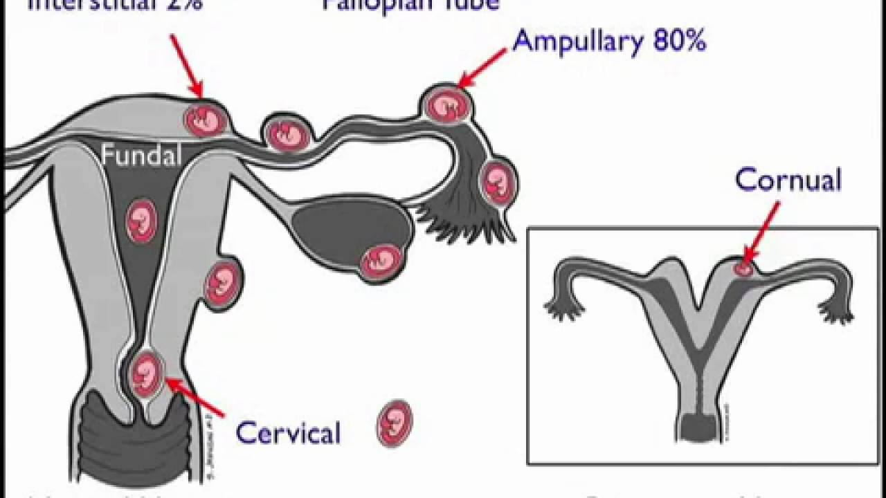 Ectopic Pregnancy Case Study - rnspeak.com