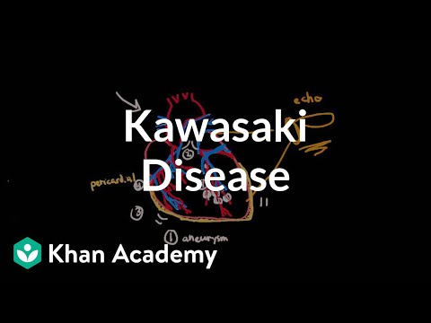 Kawasaki disease: diagnosis and treatment | Circulatory System and Disease | NCLEX-RN | Khan Academy