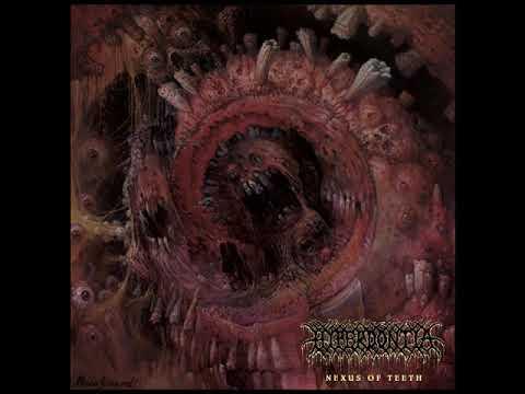 Hyperdontia - Nexus of Teeth (2018) FULL ALBUM