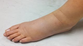 Home Remedies For Water Retention In Body (Edema)