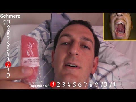 Mandel OP Erfahrungsbericht 11 Tage nach der Tonsillektomie
