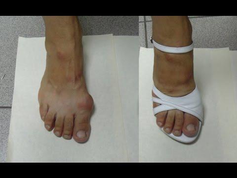Делаем босоножки на высоком каблуке | Making sandals with high heelsиз YouTube · С высокой четкостью · Длительность: 4 мин18 с  · Просмотры: более 16.000 · отправлено: 12.08.2015 · кем отправлено: Tufelka Vlg