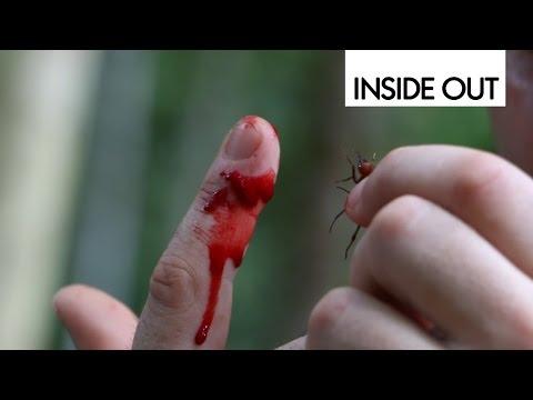 Укусы насекомых. Что делать после укуса?