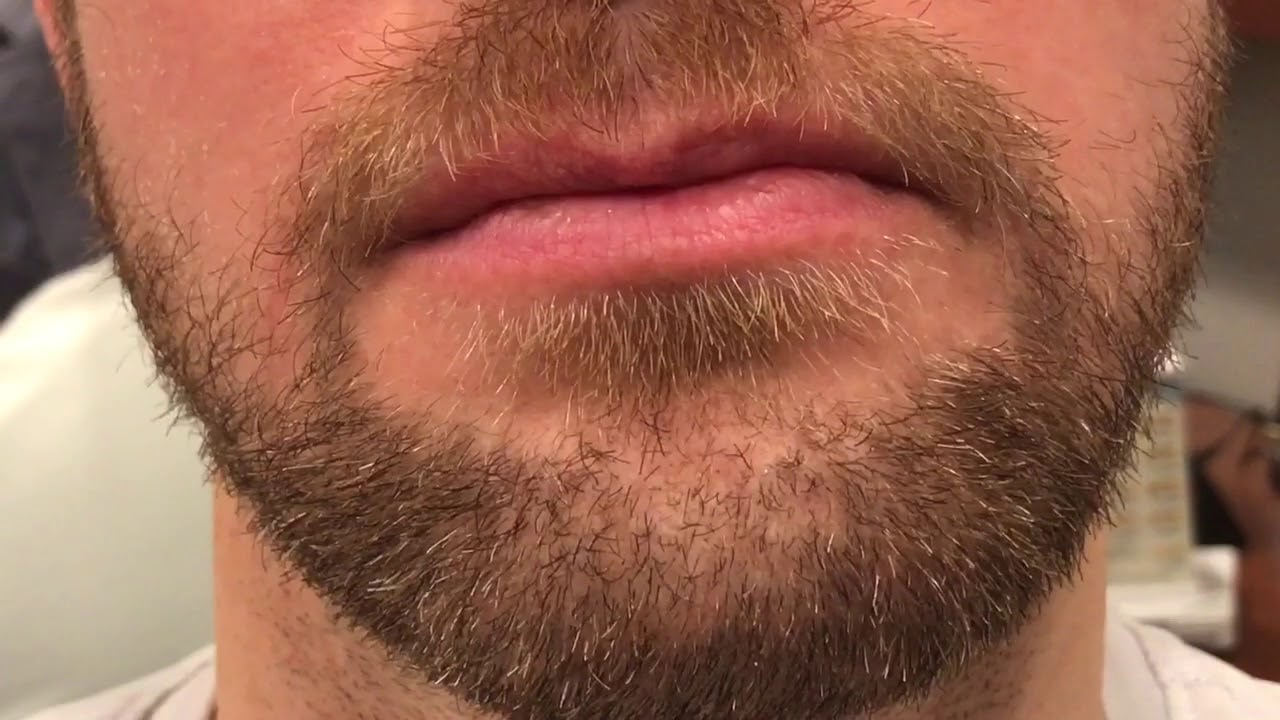 close beard styles beard to beard fue hair transplant close up video in. Black Bedroom Furniture Sets. Home Design Ideas