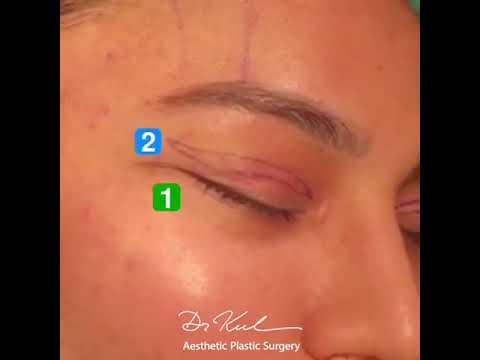 Cat Eye / Badem Göz / Temporal Lift