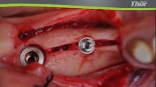 расщепление гребня с Thor 3(операция расщепление гребня с помощью пьезохирургического аппарата Тор., 2013-12-26T17:46:50.000Z)